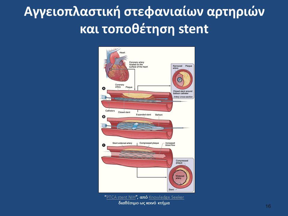 """Αγγειοπλαστική στεφανιαίων αρτηριών και τοποθέτηση stent 16 """"PTCA stent NIH"""", από Knowledge Seeker διαθέσιμo ως κοινό κτήμαPTCA stent NIHKnowledge See"""