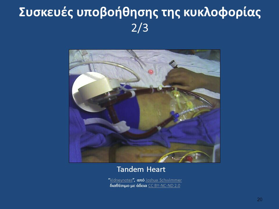 """Συσκευές υποβοήθησης της κυκλοφορίας 2/3 20 Tandem Heart """"kidneynotes"""", από Joshua Schwimmer διαθέσιμo με άδεια CC BY-NC-ND 2.0kidneynotesJoshua Schwi"""