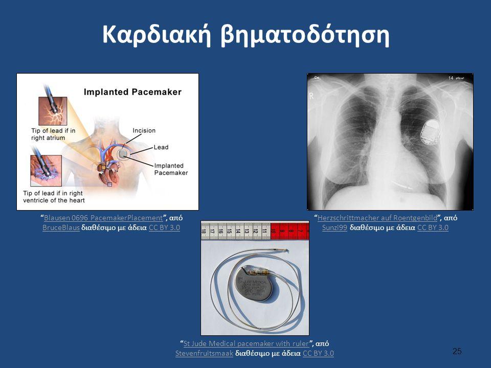"""Καρδιακή βηματοδότηση 25 """"Blausen 0696 PacemakerPlacement"""", από BruceBlaus διαθέσιμo με άδεια CC BY 3.0Blausen 0696 PacemakerPlacement BruceBlausCC BY"""