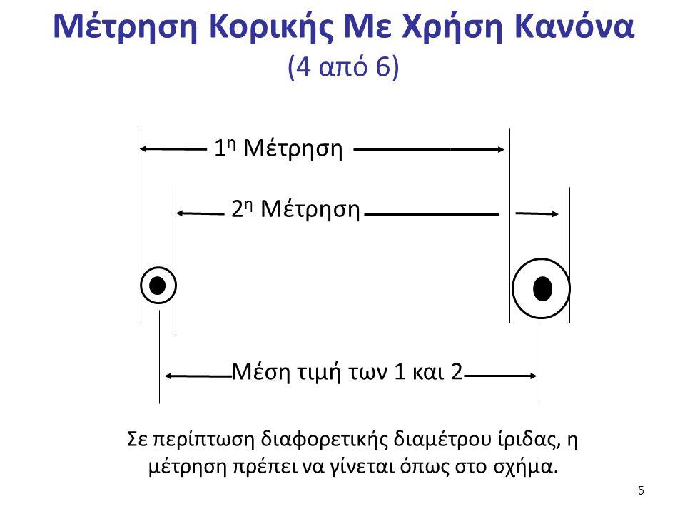 Μέτρηση Κορικής Με Χρήση Κανόνα (4 από 6) 1 η Μέτρηση 2 η Μέτρηση Μέση τιμή των 1 και 2 Σε περίπτωση διαφορετικής διαμέτρου ίριδας, η μέτρηση πρέπει να γίνεται όπως στο σχήμα.