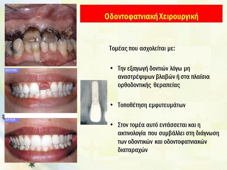 Οδοντοφατνιακή Χειρουργική Τομέας που ασχολείται με: Την εξαγωγή δοντιών λόγω μη αναστρέψιμων βλαβών ή στα πλαίσια ορθοδοντικής θεραπείας Τοποθέτηση εμφυτευμάτων Στον τομέα αυτό εντάσσεται και η ακτινολογία που συμβάλλει στη διάγνωση των οδοντικών και οδοντοφατνιακών διαταραχών