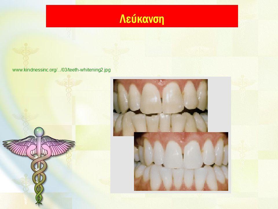 Λεύκανση www.kindnessinc.org/.../03/teeth-whitening2.jpg