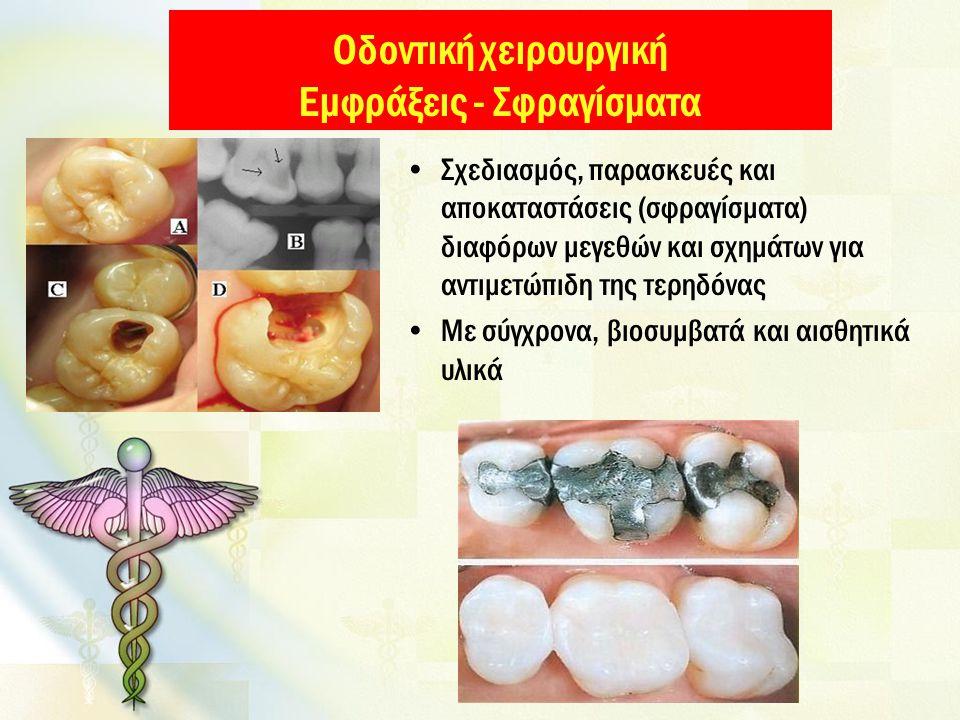 Οδοντική χειρουργική Εμφράξεις - Σφραγίσματα Σχεδιασμός, παρασκευές και αποκαταστάσεις (σφραγίσματα) διαφόρων μεγεθών και σχημάτων για αντιμετώπιδη της τερηδόνας Με σύγχρονα, βιοσυμβατά και αισθητικά υλικά