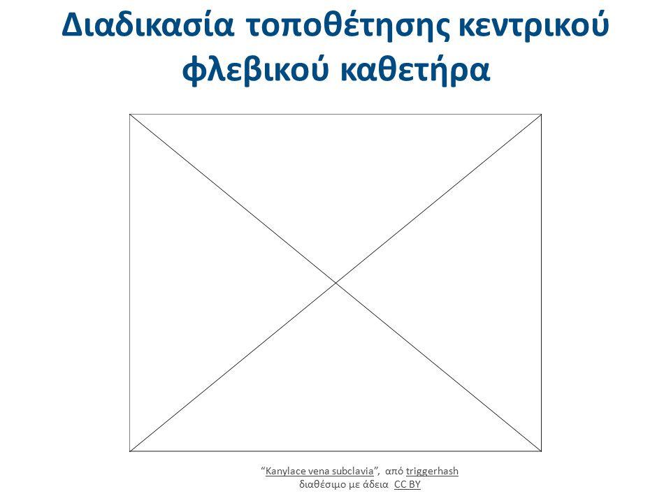 """Διαδικασία τοποθέτησης κεντρικού φλεβικού καθετήρα """"Kanylace vena subclavia"""", από triggerhash διαθέσιμο με άδεια CC BYKanylace vena subclaviatriggerha"""
