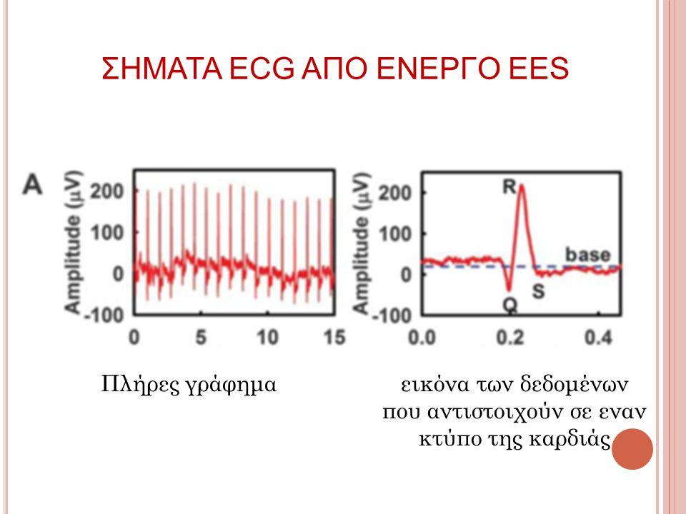 Πλήρες γράφημα ΣΗΜΑΤΑ ECG ΑΠΟ ΕΝΕΡΓΟ ΕΕS εικόνα των δεδομένων που αντιστοιχούν σε εναν κτύπο της καρδιάς