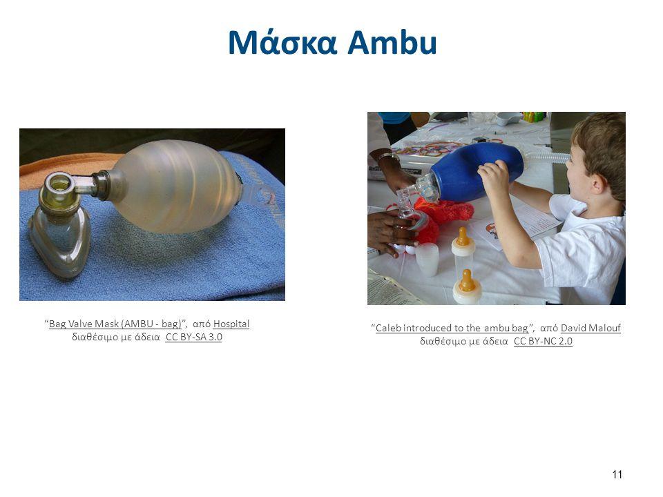 """Μάσκα Αmbu """"Bag Valve Mask (AMBU - bag)"""", από Hospital διαθέσιμο με άδεια CC BY-SA 3.0Bag Valve Mask (AMBU - bag)HospitalCC BY-SA 3.0 """"Caleb introduce"""