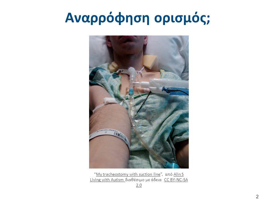 """Αναρρόφηση ορισμός; """"My tracheostomy with suction line"""", από Alin S Living with Autism διαθέσιμο με άδεια CC BY-NC-SA 2.0My tracheostomy with suction"""