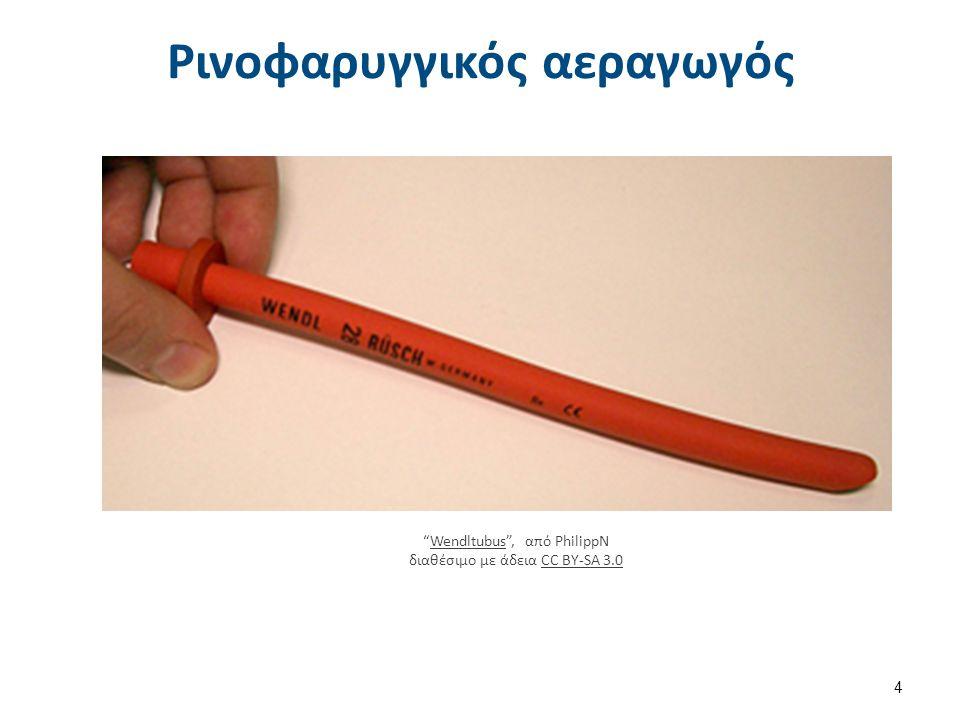 Ενδοτράχειος σωλήνας Endotracheal tube colored , από PhilippN διαθέσιμο ως κοινό κτήμα.Endotracheal tube colored Αυλός αναρρόφησης Βαλβίδα φουσκώματος δακτυλίου Μπαλονάκι μεγάλου όγκου, χαμηλής πίεσης Άκρο Hooded Murphy Στόμιο εκκένωσης Sondeintubation , από Bigomar2 διαθέσιμο με άδεια CC BY-SA 3.0SondeintubationBY-SA 3.0 5