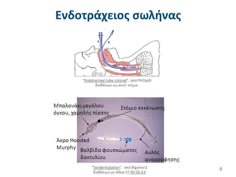 """Ενδοτράχειος σωλήνας """"Endotracheal tube colored"""", από PhilippN διαθέσιμο ως κοινό κτήμα.Endotracheal tube colored Αυλός αναρρόφησης Βαλβίδα φουσκώματο"""
