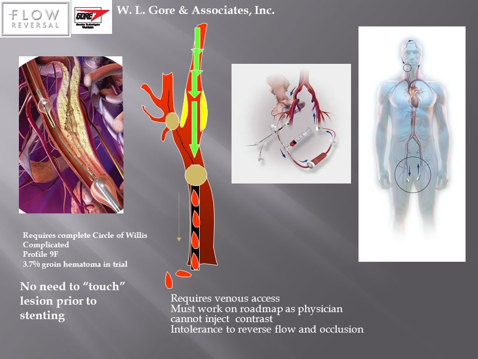 "W. L. Gore & Associates, Inc. No need to ""touch"" lesion prior to stenting Requires complete Circle of Willis Complicated Profile 9F 3.7% groin hematom"