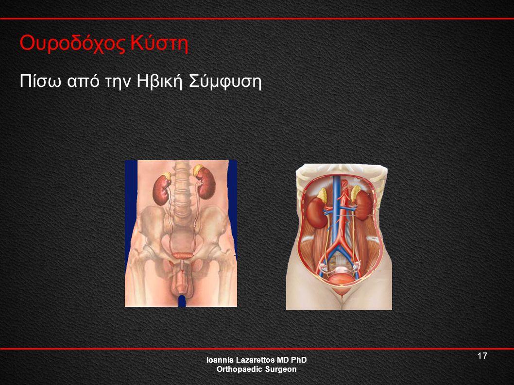 17 Ουροδόχος Κύστη Ioannis Lazarettos MD PhD Orthopaedic Surgeon Πίσω από την Ηβική Σύμφυση
