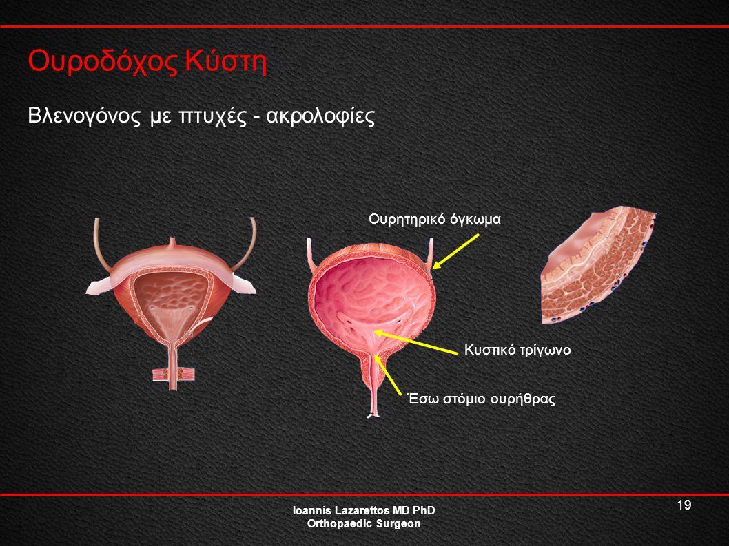 19 Ουροδόχος Κύστη Ioannis Lazarettos MD PhD Orthopaedic Surgeon Βλενογόνος με πτυχές - ακρολοφίες Ουρητηρικό όγκωμα Έσω στόμιο ουρήθρας Κυστικό τρίγω