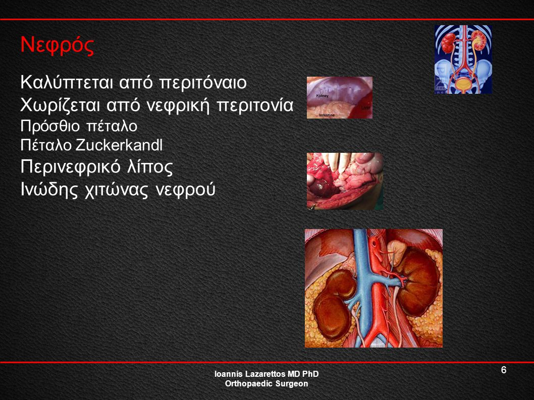 6 Νεφρός Ioannis Lazarettos MD PhD Orthopaedic Surgeon Καλύπτεται από περιτόναιο Χωρίζεται από νεφρική περιτονία Πρόσθιο πέταλο Πέταλο Zuckerkandl Περ