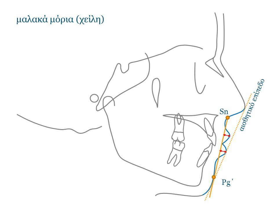 μαλακά μόρια (χείλη) Sn Pg΄ αισθητικό επίπεδο