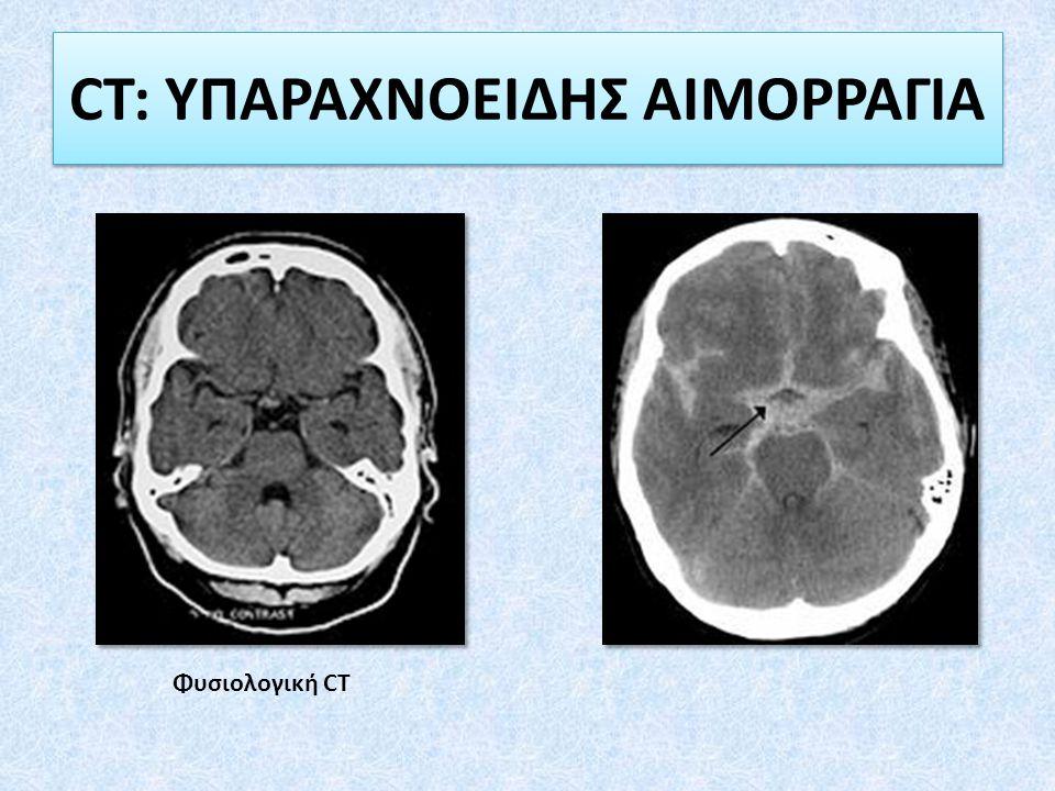 CT: ΥΠΑΡΑΧΝΟΕΙΔΗΣ ΑΙΜΟΡΡΑΓΙΑ Φυσιολογική CT