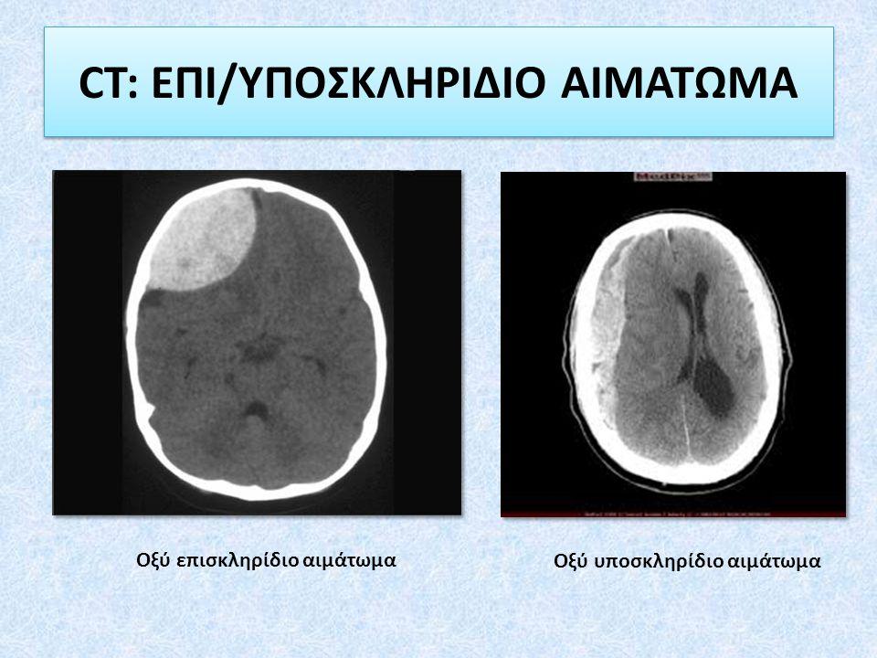 CT: ΕΠΙ/ΥΠΟΣΚΛΗΡΙΔΙΟ ΑΙΜΑΤΩΜΑ Οξύ επισκληρίδιο αιμάτωμα Οξύ υποσκληρίδιο αιμάτωμα