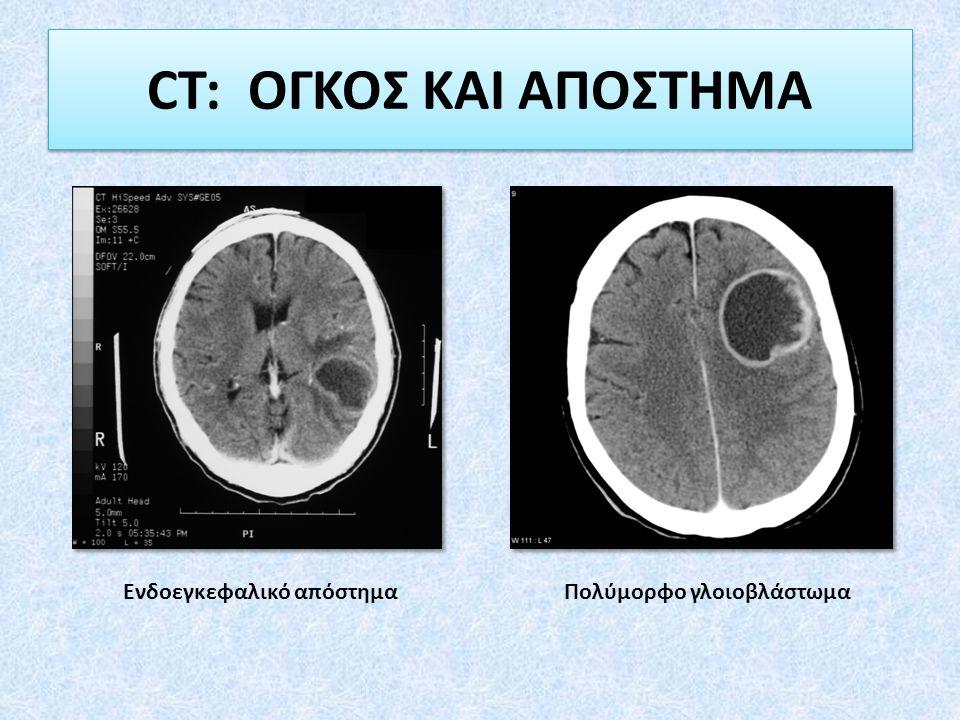 CT: ΟΓΚΟΣ ΚΑΙ ΑΠΟΣΤΗΜΑ Ενδοεγκεφαλικό απόστημαΠολύμορφο γλοιοβλάστωμα