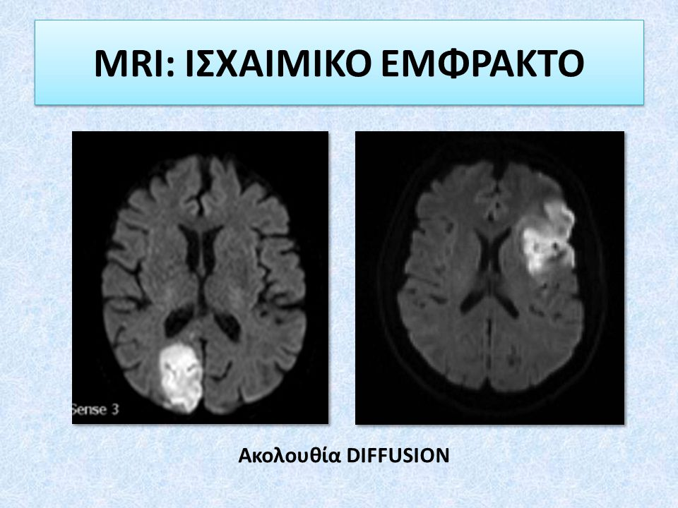 MRI: ΙΣΧΑΙΜΙΚΟ ΕΜΦΡΑΚΤΟ Ακολουθία DIFFUSION