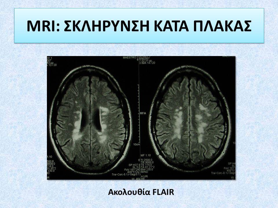 MRI: ΣΚΛΗΡΥΝΣΗ ΚΑΤΑ ΠΛΑΚΑΣ Ακολουθία FLAIR