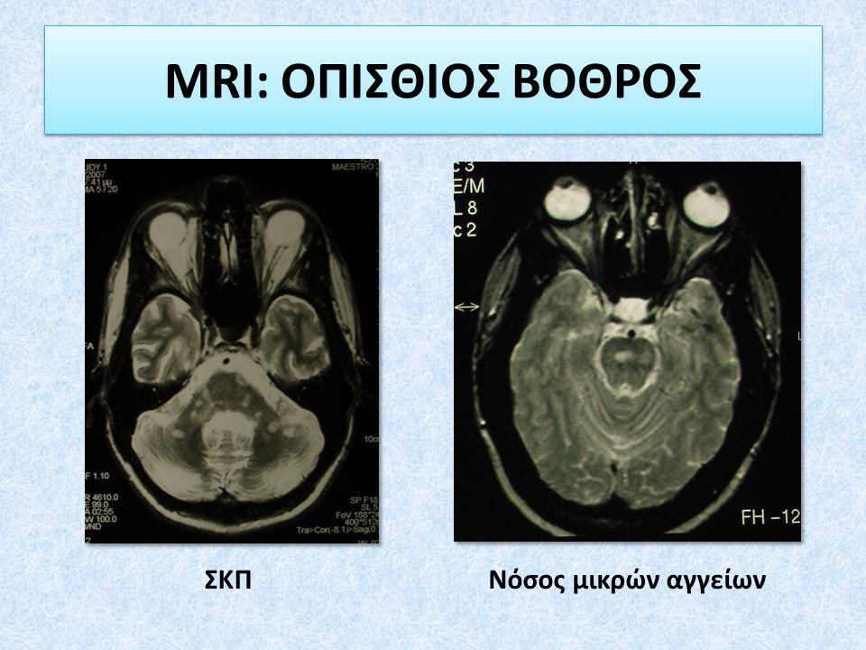 MRI: ΟΠΙΣΘΙΟΣ ΒΟΘΡΟΣ ΣΚΠΝόσος μικρών αγγείων