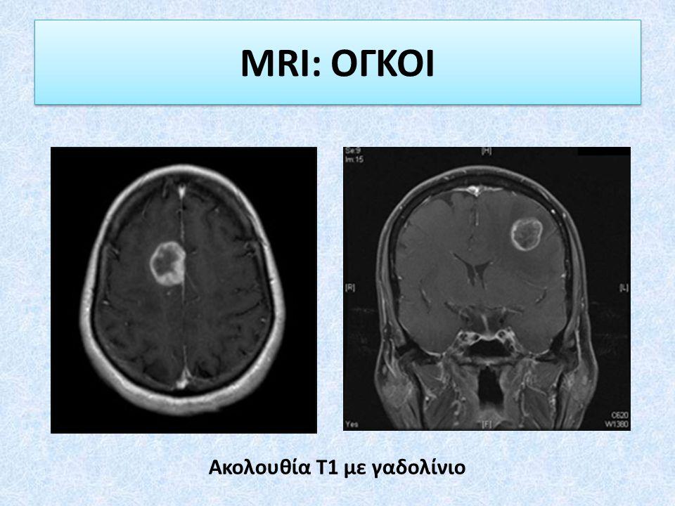 MRI: ΟΓΚΟΙ Ακολουθία Τ1 με γαδολίνιο