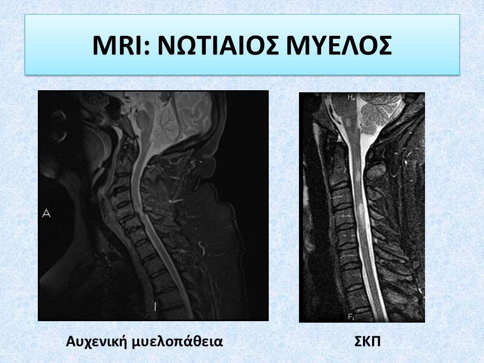 MRI: ΝΩΤΙΑΙΟΣ ΜΥΕΛΟΣ ΣΚΠΑυχενική μυελοπάθεια