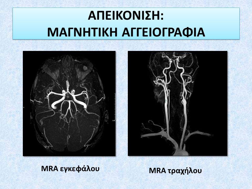 ΑΠΕΙΚΟΝΙΣΗ: ΜΑΓΝΗΤΙΚΗ ΑΓΓΕΙΟΓΡΑΦΙΑ MRA εγκεφάλου MRA τραχήλου