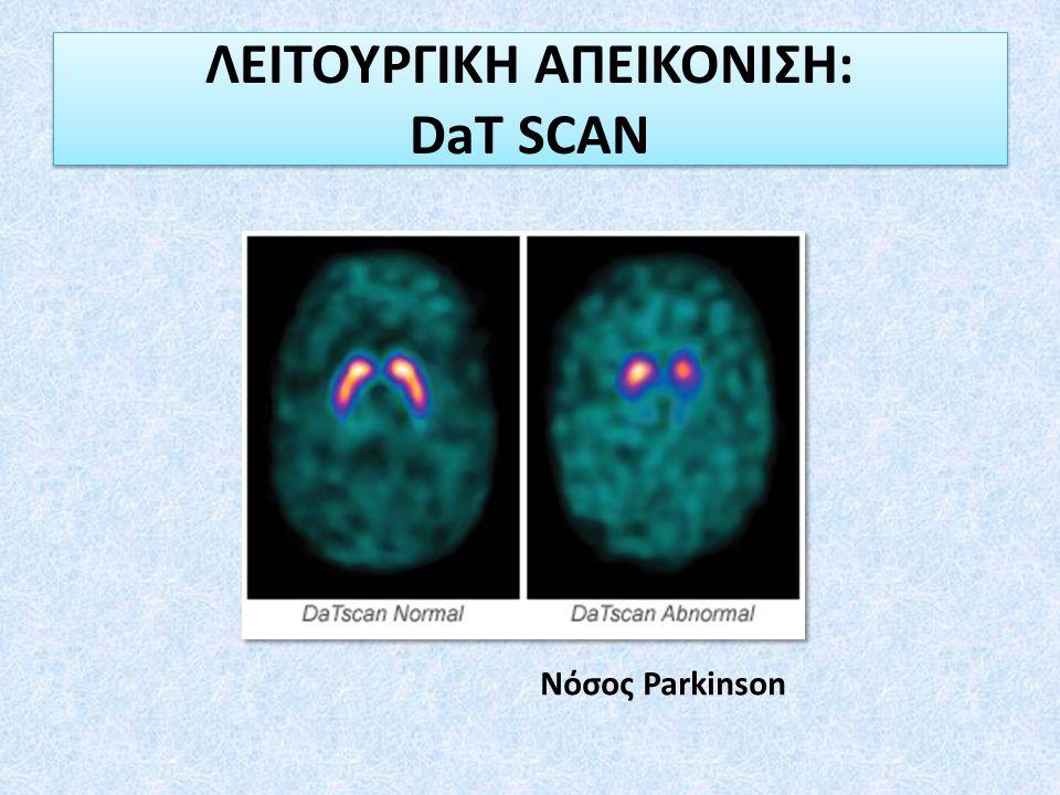 ΛΕΙΤΟΥΡΓΙΚΗ ΑΠΕΙΚΟΝΙΣΗ: DaT SCAN Νόσος Parkinson