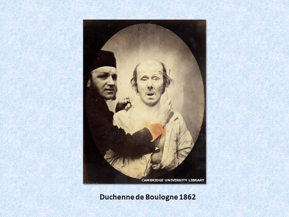Duchenne de Boulogne 1862
