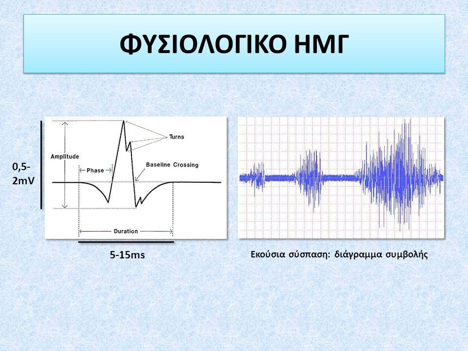 ΦΥΣΙΟΛΟΓΙΚΟ ΗΜΓ 5-15ms 0,5- 2mV Εκούσια σύσπαση: διάγραμμα συμβολής