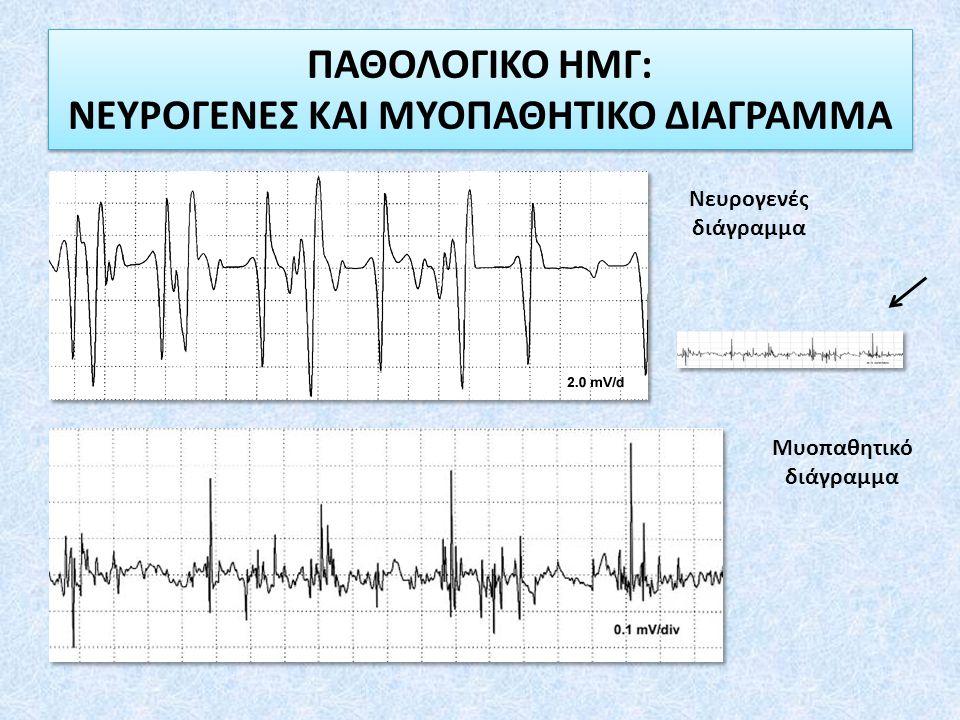 ΠΑΘΟΛΟΓΙΚΟ ΗΜΓ: ΝΕΥΡΟΓΕΝΕΣ ΚΑΙ ΜΥΟΠΑΘΗΤΙΚΟ ΔΙΑΓΡΑΜΜΑ Νευρογενές διάγραμμα Μυοπαθητικό διάγραμμα