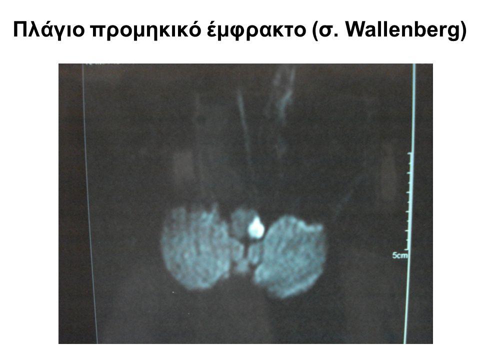 Πλάγιο προμηκικό έμφρακτο (σ. Wallenberg)