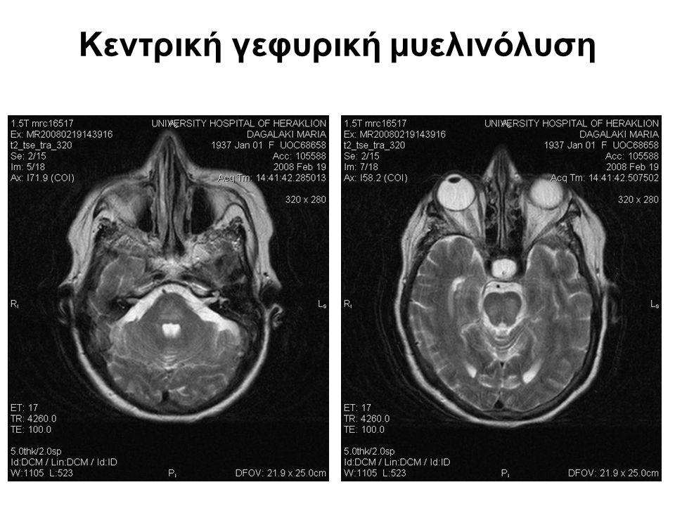 Κεντρική γεφυρική μυελινόλυση