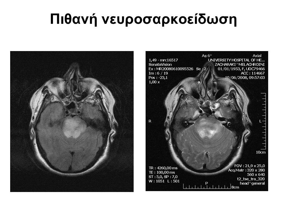Πιθανή νευροσαρκοείδωση