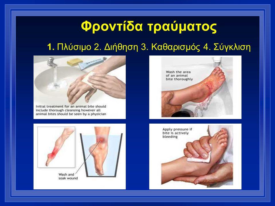 Φροντίδα τραύματος 1. Πλύσιμο 2. Διήθηση 3. Καθαρισμός 4. Σύγκλιση