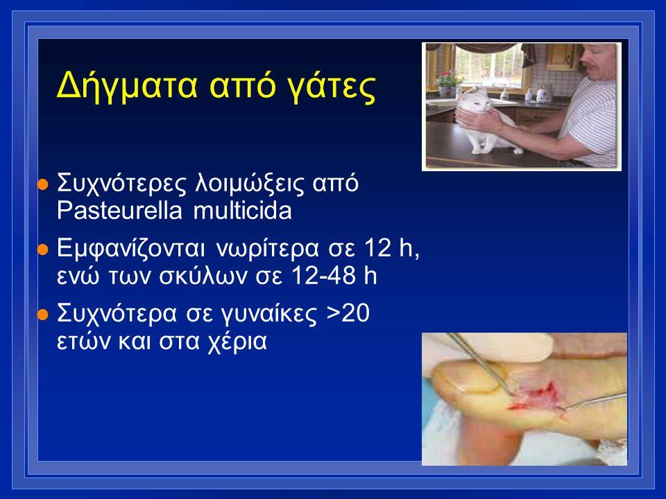 Δήγματα από γάτες l Συχνότερες λοιμώξεις από Pasteurella multicida l Εμφανίζονται νωρίτερα σε 12 h, ενώ των σκύλων σε 12-48 h l Συχνότερα σε γυναίκες