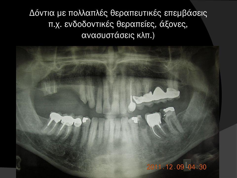 Στοματικά προβλήματα ηλικιωμένων Απώλεια δοντιών 1 Προβλήματα από οδοντοστοιχίες 2 Μυλική τερηδόνα και τερηδόνα ρίζας 3 Βρυγμός 4 Ξηροστομία 5 Καρκίνο