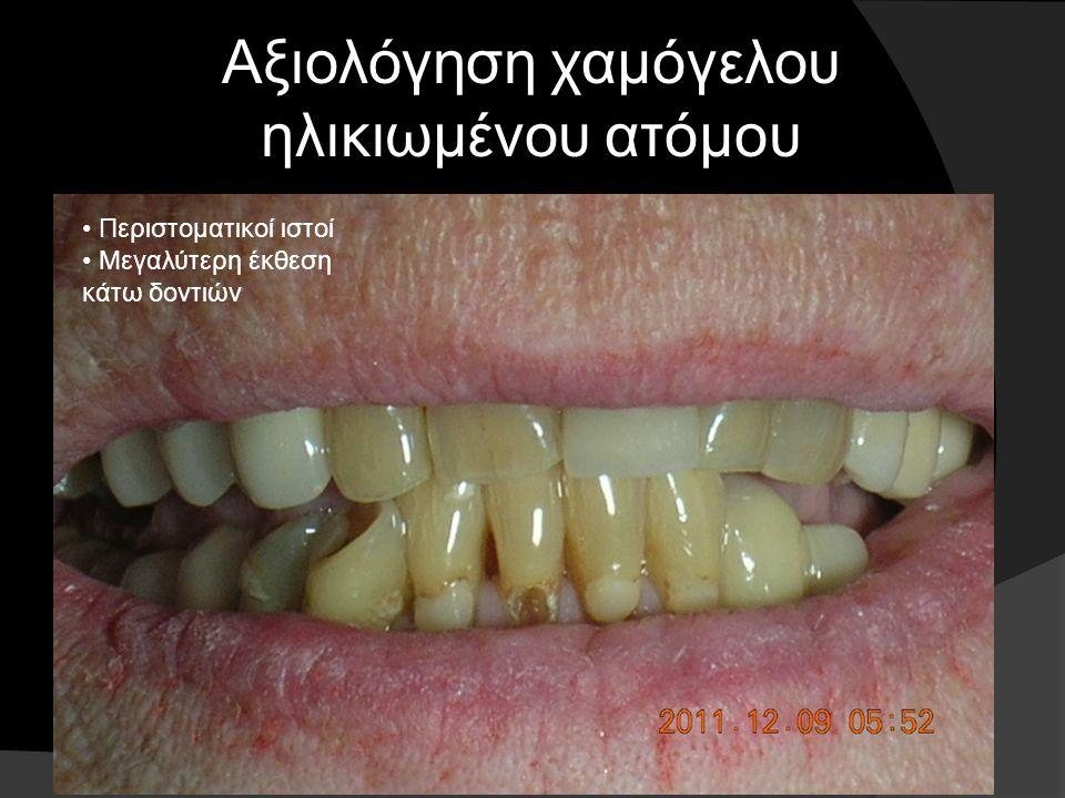 Υπάρχουν και οι ενόδοντες...με προβλήματα στις υπάρχουσες αποκαταστάσεις. Τα δόντια έχουν παρασκευαστεί σε μεγάλο βαθμό στη διάρκεια της ζωής τους…!