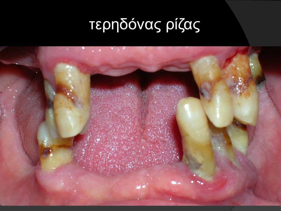 τερηδόνα ρίζας + περιοδοντίτιδα