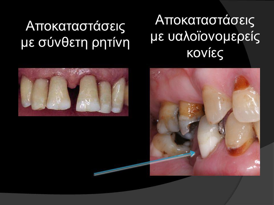 Γενικές αρχές αποκατάστασης Αρχόμενη και στάσιμη τερηδόνα: - Μη αποκατάσταση της βλάβης (εκτός αν συντρέχουν αισθητικοί λόγοι) - Πιθανόν να απαιτείται