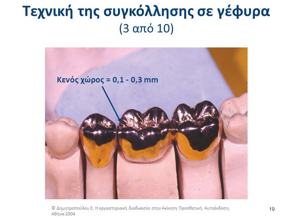Τεχνική της συγκόλλησης σε γέφυρα (3 από 10) 19 Κενός χώρος = 0,1 - 0,3 mm © Δημητροπούλου Ε. Η εργαστηριακή διαδικασία στην Ακίνητη Προσθετική. Αυτοέ