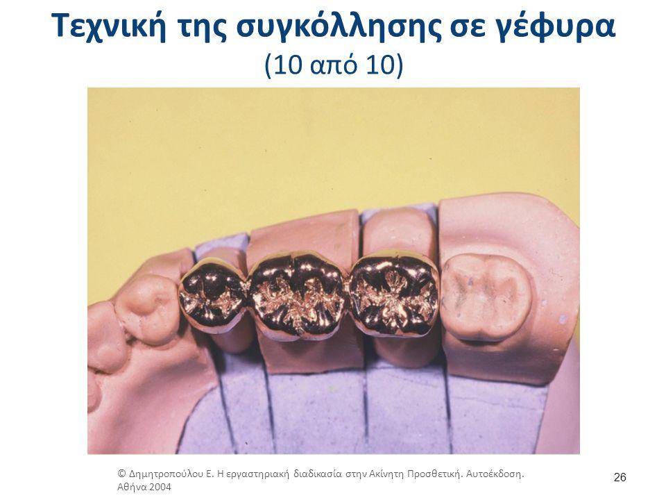 Τεχνική της συγκόλλησης σε γέφυρα (10 από 10) 26 © Δημητροπούλου Ε. Η εργαστηριακή διαδικασία στην Ακίνητη Προσθετική. Αυτοέκδοση. Αθήνα 2004