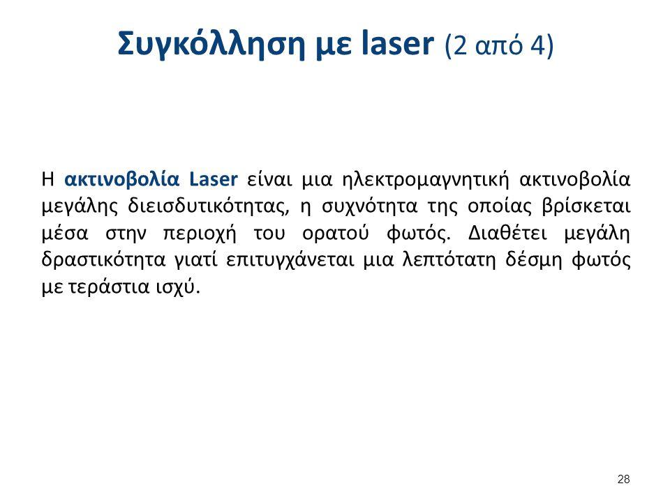 Συγκόλληση με laser (2 από 4) Η ακτινοβολία Laser είναι μια ηλεκτρομαγνητική ακτινοβολία μεγάλης διεισδυτικότητας, η συχνότητα της οποίας βρίσκεται μέ