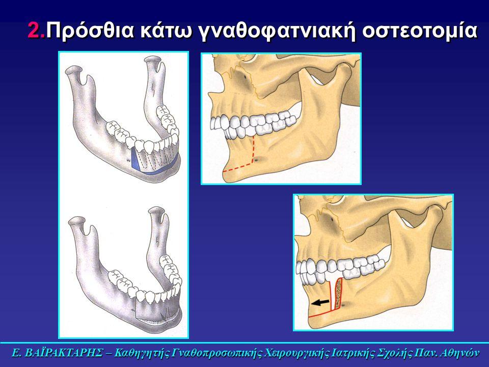 2.Πρόσθια κάτω γναθοφατνιακή οστεοτομία