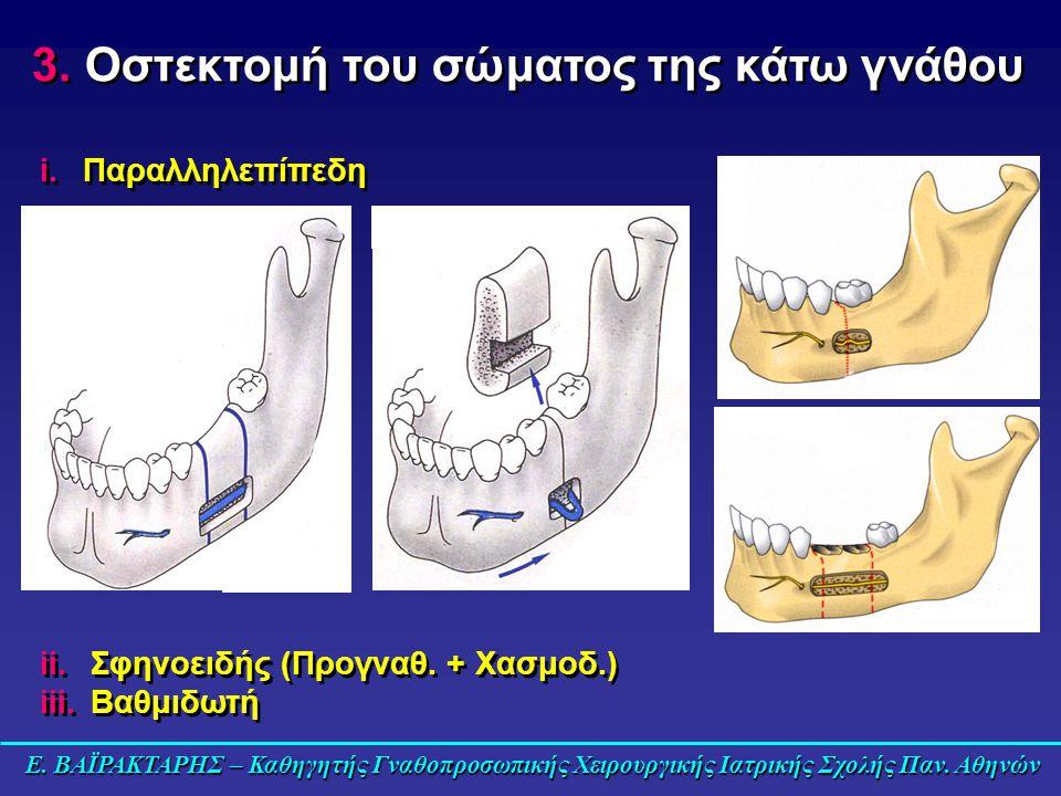 i.Παραλληλεπίπεδη 3. Οστεκτομή του σώματος της κάτω γνάθου ii.Σφηνοειδής (Προγναθ. + Χασμοδ.) iii.Βαθμιδωτή ii.Σφηνοειδής (Προγναθ. + Χασμοδ.) iii.Βαθ