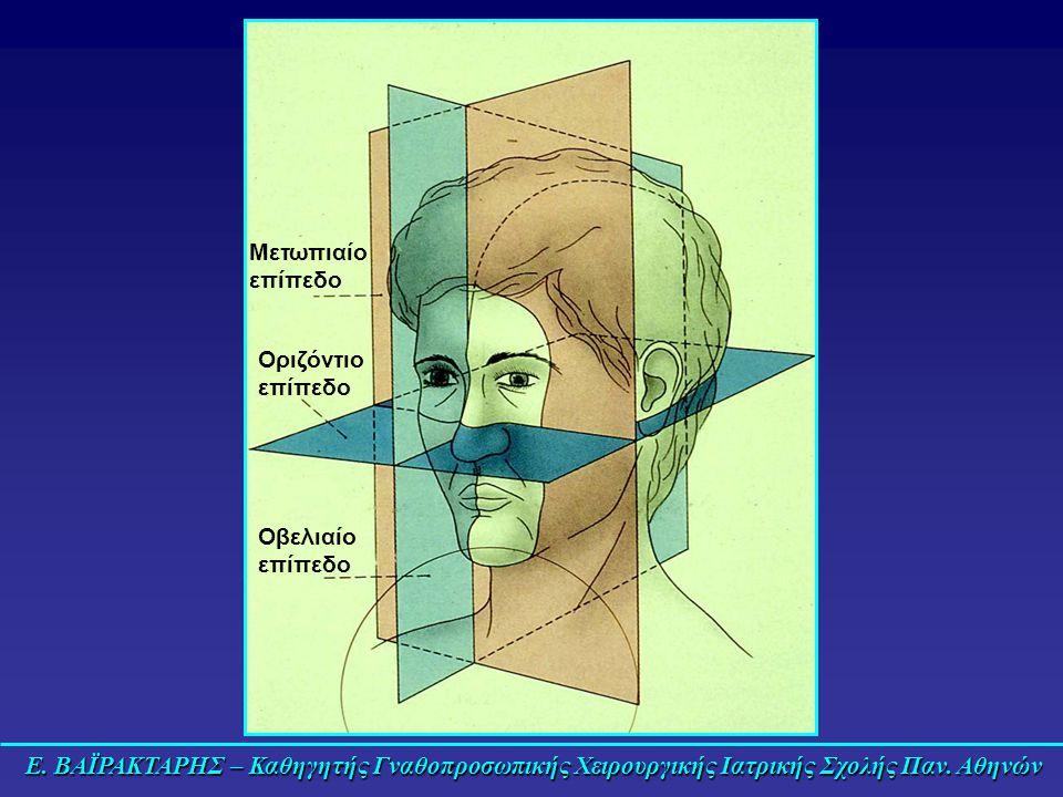 Ε. ΒΑΪΡΑΚΤΑΡΗΣ – Καθηγητής Γναθοπροσωπικής Χειρουργικής Ιατρικής Σχολής Παν. Αθηνών Μετωπιαίο επίπεδο Οριζόντιο επίπεδο Οβελιαίο επίπεδο