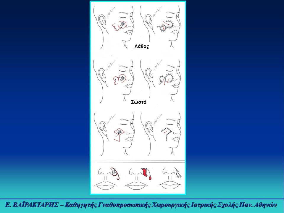 Ε. ΒΑΪΡΑΚΤΑΡΗΣ – Καθηγητής Γναθοπροσωπικής Χειρουργικής Ιατρικής Σχολής Παν. Αθηνών Λάθος Σωστό
