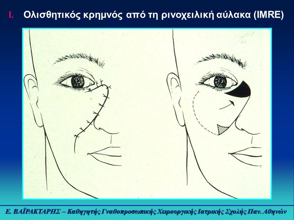 Ε.ΒΑΪΡΑΚΤΑΡΗΣ – Καθηγητής Γναθοπροσωπικής Χειρουργικής Ιατρικής Σχολής Παν.