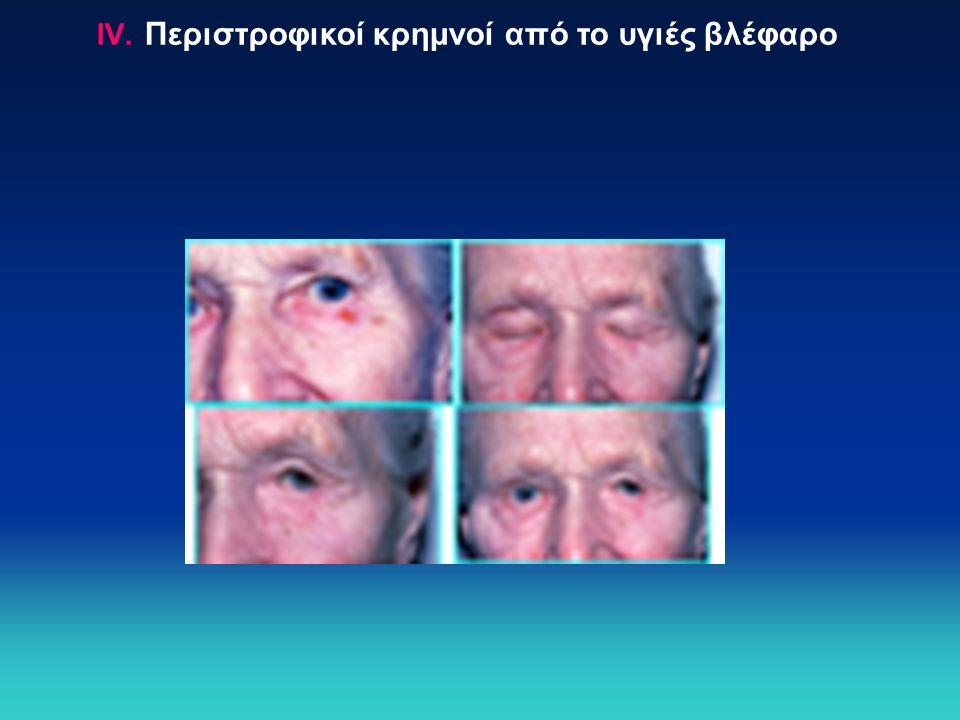 IV. Περιστροφικοί κρημνοί από το υγιές βλέφαρο
