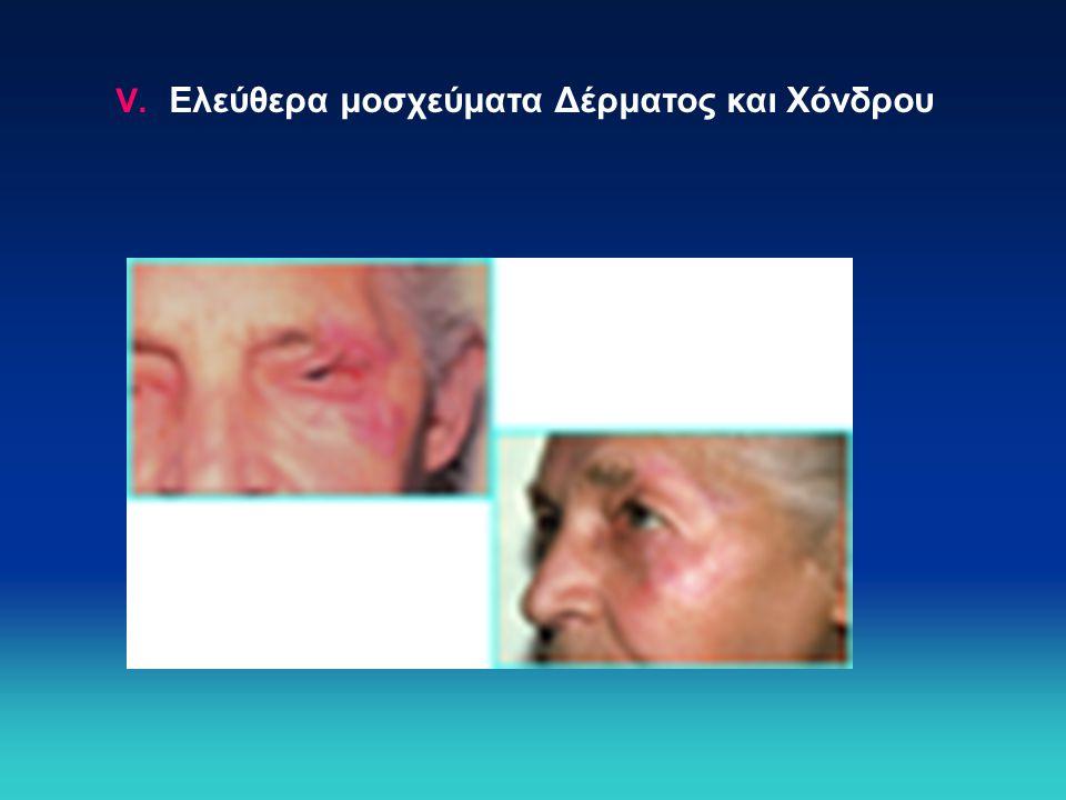 V. Ελεύθερα μοσχεύματα Δέρματος και Χόνδρου